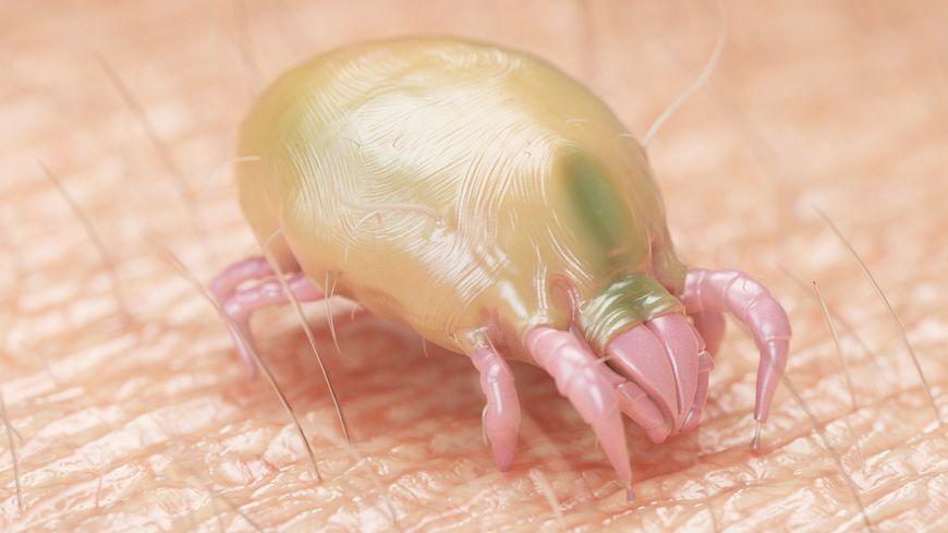 dust mite allergy